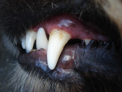 歯槽膿漏(歯周炎)