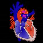 動脈管開存症