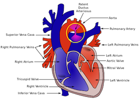 動脈管開存症の解説イラスト