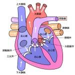 肺動脈弁狭窄症