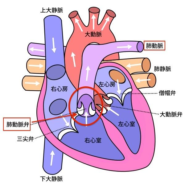 心臓のイラストで解説する肺動脈弁の場所
